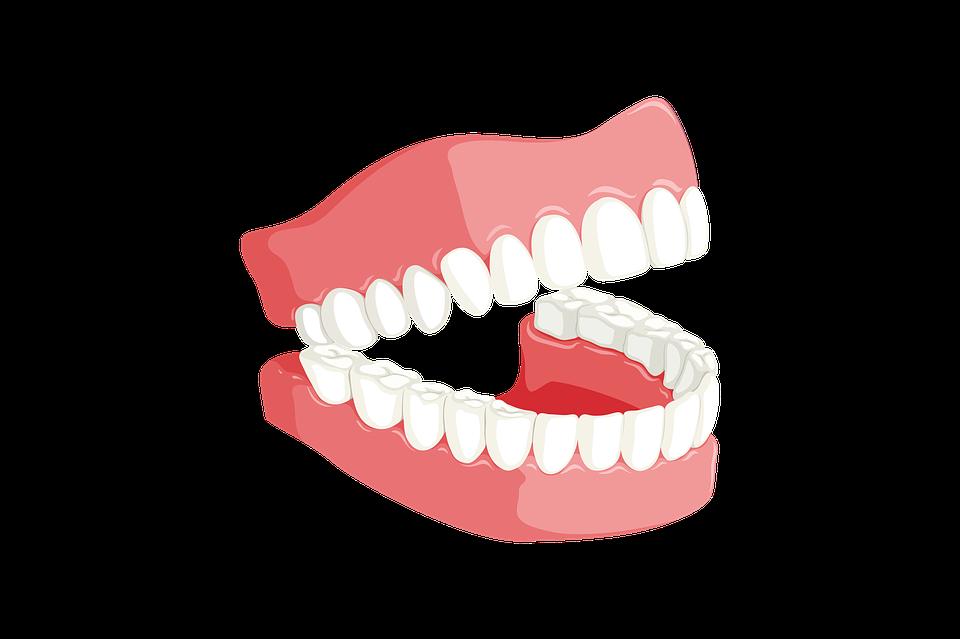 Tandretning med Sanadent